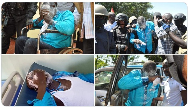 FDC Flag Bearer Patrick Amuriat Oboi Goes Blind After Being Pepper Sprayed In The Eyes By Police. 3